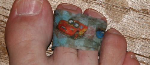 Toes wrapped in Cars medical tape